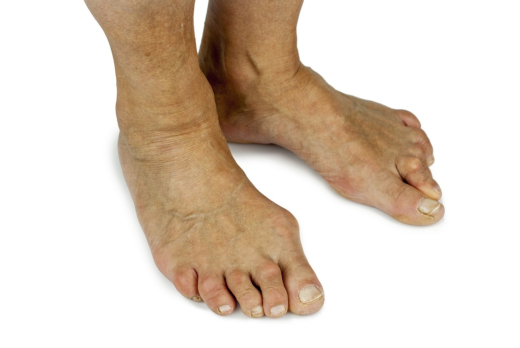 Common Causes and Symptoms of Bunions